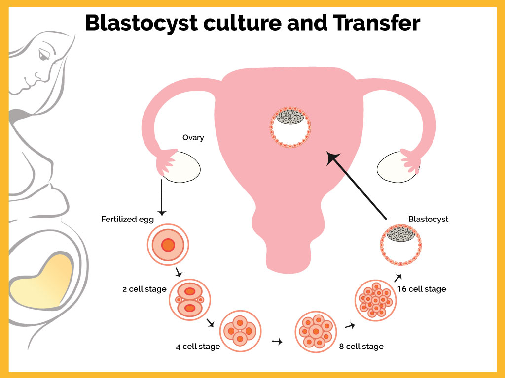 Dream Flower IVF Centre|Best Infertility treatment centre in South India - Blastocyst culture and transfer