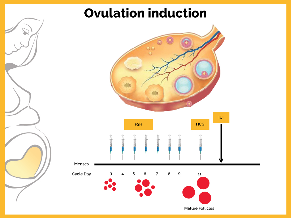 Dream Flower IVF Centre|Best Infertility treatment centre in South India - Ovulation Induction