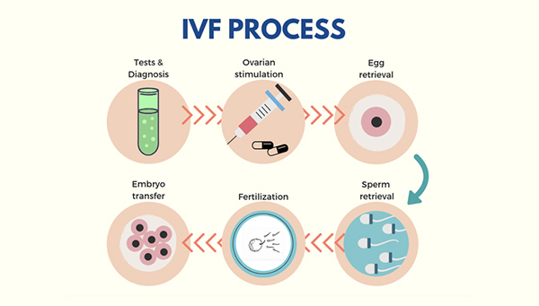 Dream Flower IVF Centre|Best Infertility treatment centre in South India - Steps involved in Infertility Treatment